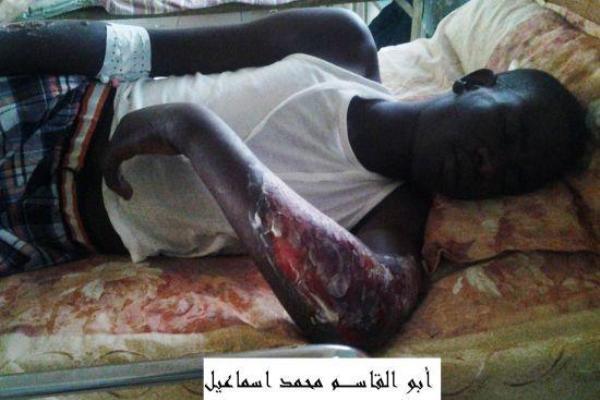 كم عدد المعتقلين الذين يتعرضون للتعذيب على يد جهاز الأمن في هذه اللحظة؟