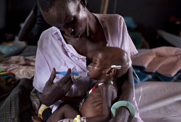 هزال الأطفال  ينذر بأسوأ مجاعة في تاريخ جنوب السودان