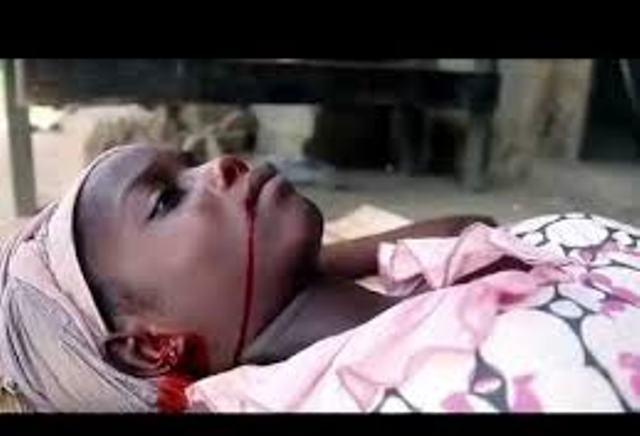 تم ارسال عينة من دم المريض للخرطوم : إشتباه في حالة وفاة سببها (ايبولا) بغرب دارفور