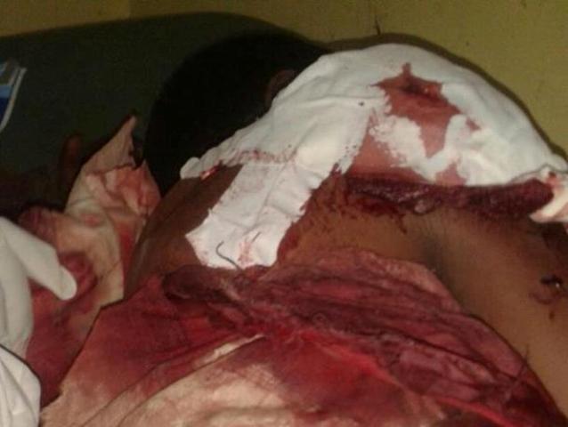 إصابة شخصين بجروح خطيرة بنيران الشرطة فى ريفي كسلا