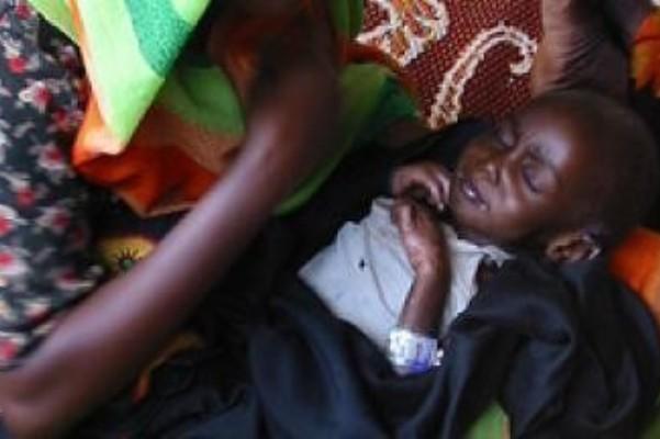 وفيات لاطفال بغرب دارفور بسبب مرض (الحصبة)