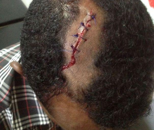 إصابات خطيرة لأطباء بمستشفى (الذرة) بسبب اعتداء أفراد الامن