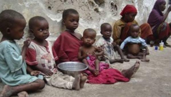 (38%) من أطفال السودان مصابون بداء التقزم