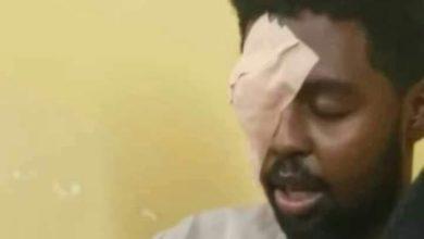 صورة إعتداء على طبيب سوداني يفجر غضب الكوادر الصحية